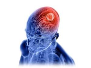 tumorcerebral